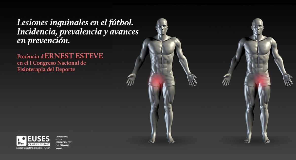 El professor d'EUSES-UdG, Ernest Esteve ha participat en el I Congrés Nacional de Fisioteràpia de l'Esport amb la ponència: 'Lesions inguinals en el futbol. Incidència, prevalença i avenços en prevenció'