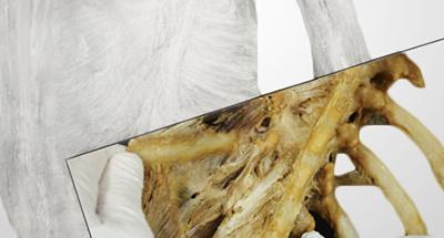 Realitzat al laboratori d'anatomia de la Facultat de Medicina de la UdG el taller d'Anatomia Funcional del Tronc organitzat per EUSES