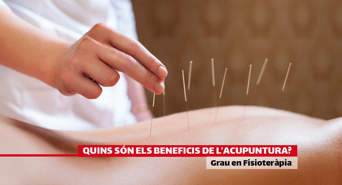Quins són els beneficis de l'acupuntura?
