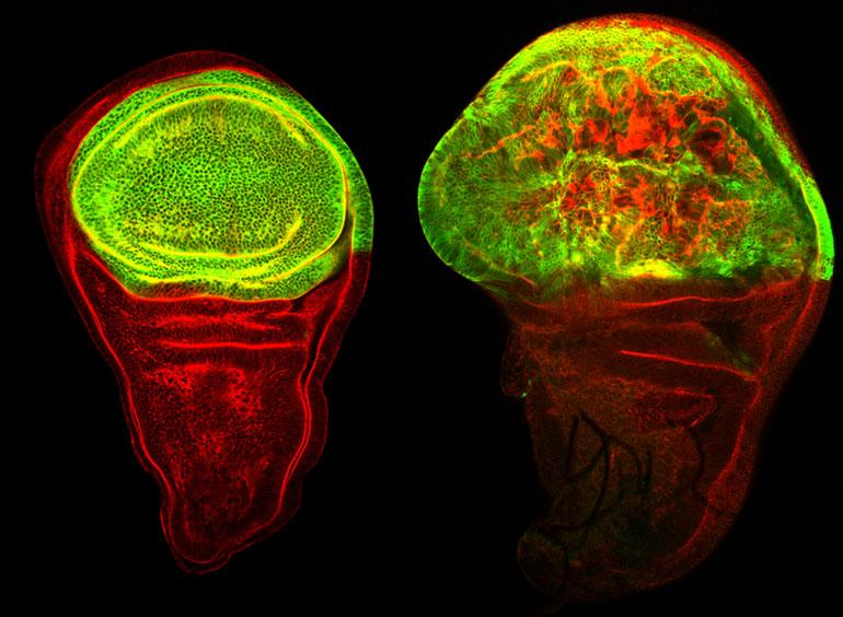 El profesor de EUSES-URV Dr. Xavier Franch Marro, participa en un importante estudio que concluye que unos mismos genes pueden provocar un tumor y su metástasis